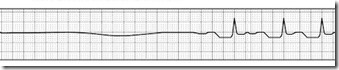 asystole-to-NS