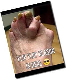flip-flop-season